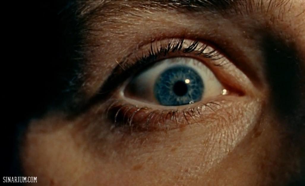 بررسی تکنیکی چشم چران